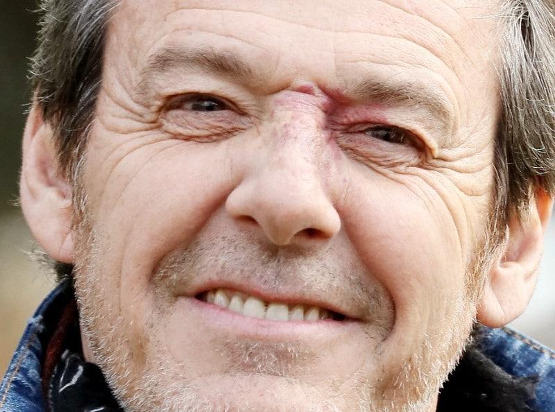 Jean-Luc Reichmann. Il camouflait sa tache de vin au début des Z'amours
