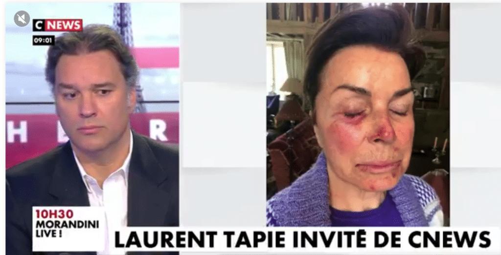 Dominique Tapie sous le choc !